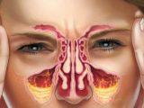 Гнойный гайморит – причины, симптомы, лечение